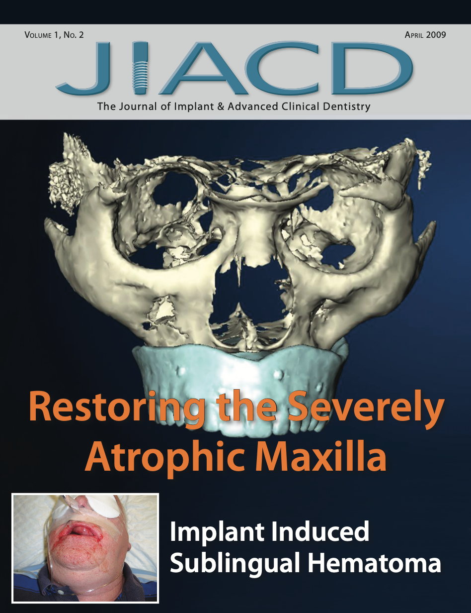 Restoring the Severely Atrophic Maxilla