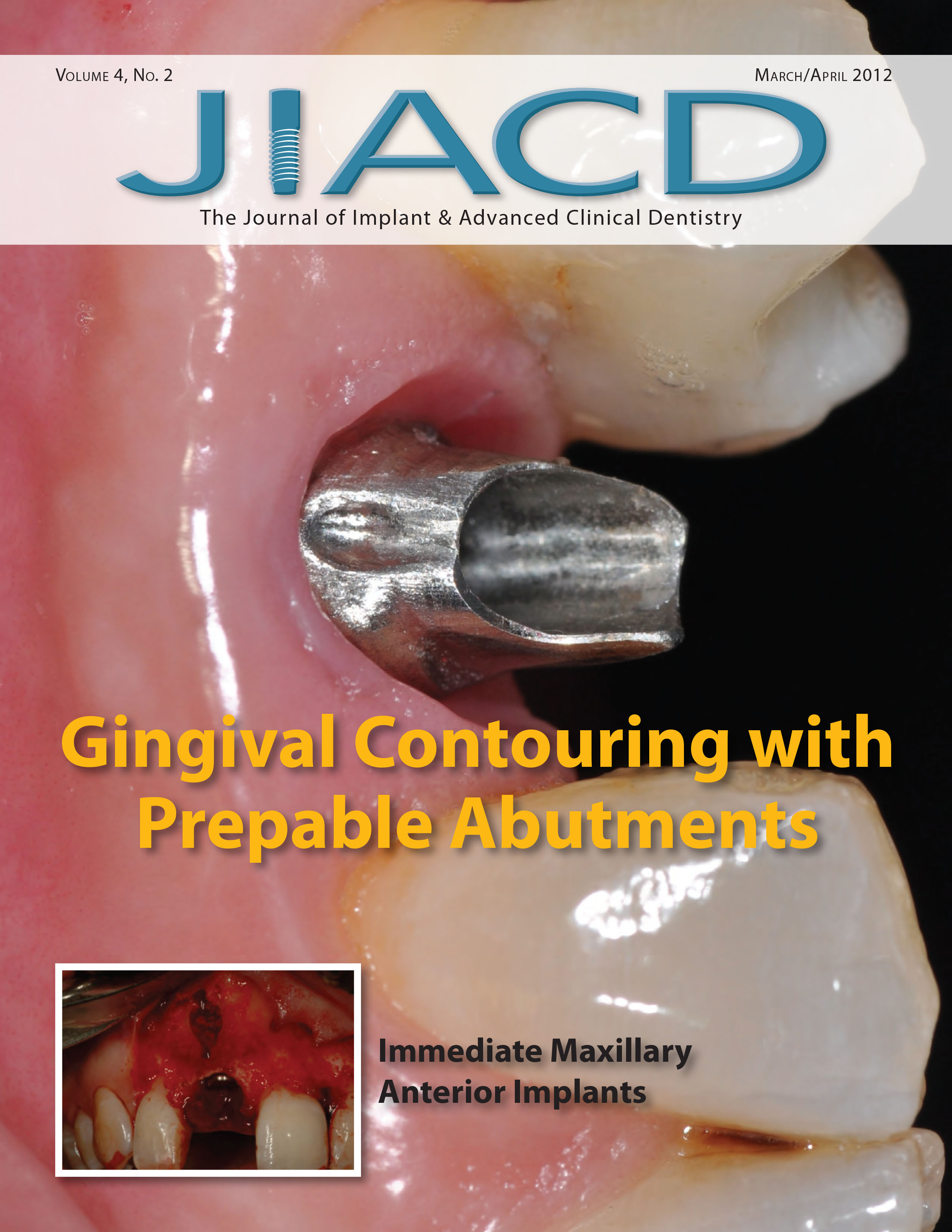 Gingival Contouring with Prepable Abutments