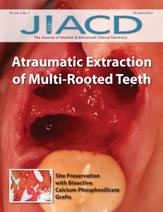 Atraumatic Extraction of Multi-Rooted Teeth