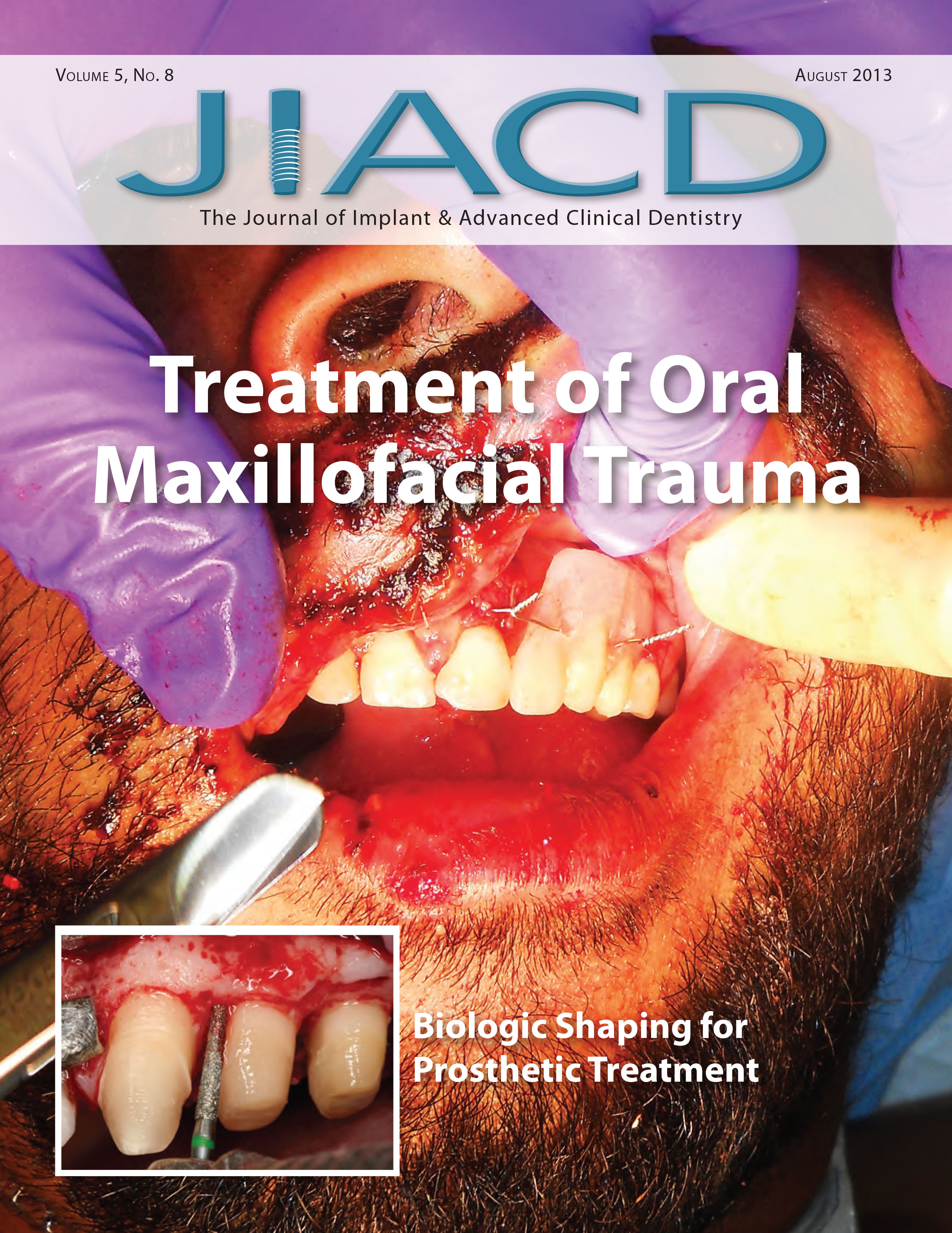 Treatment of Oral Maxillofacial Trauma