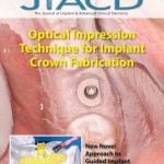 Optical Impression Technique for Implant Crown Fabrication