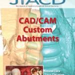 CAD/CAM Custom Abutments