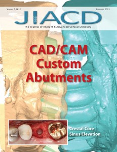 CAD/CAM Custom Abutments