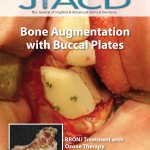 Bone Augmentation with Buccal Plates