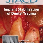 Implant Stabilization of Dental Trauma