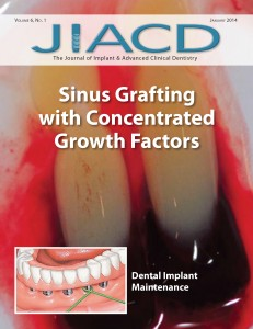 Sinus Grafting with Concentrated Growth Factors