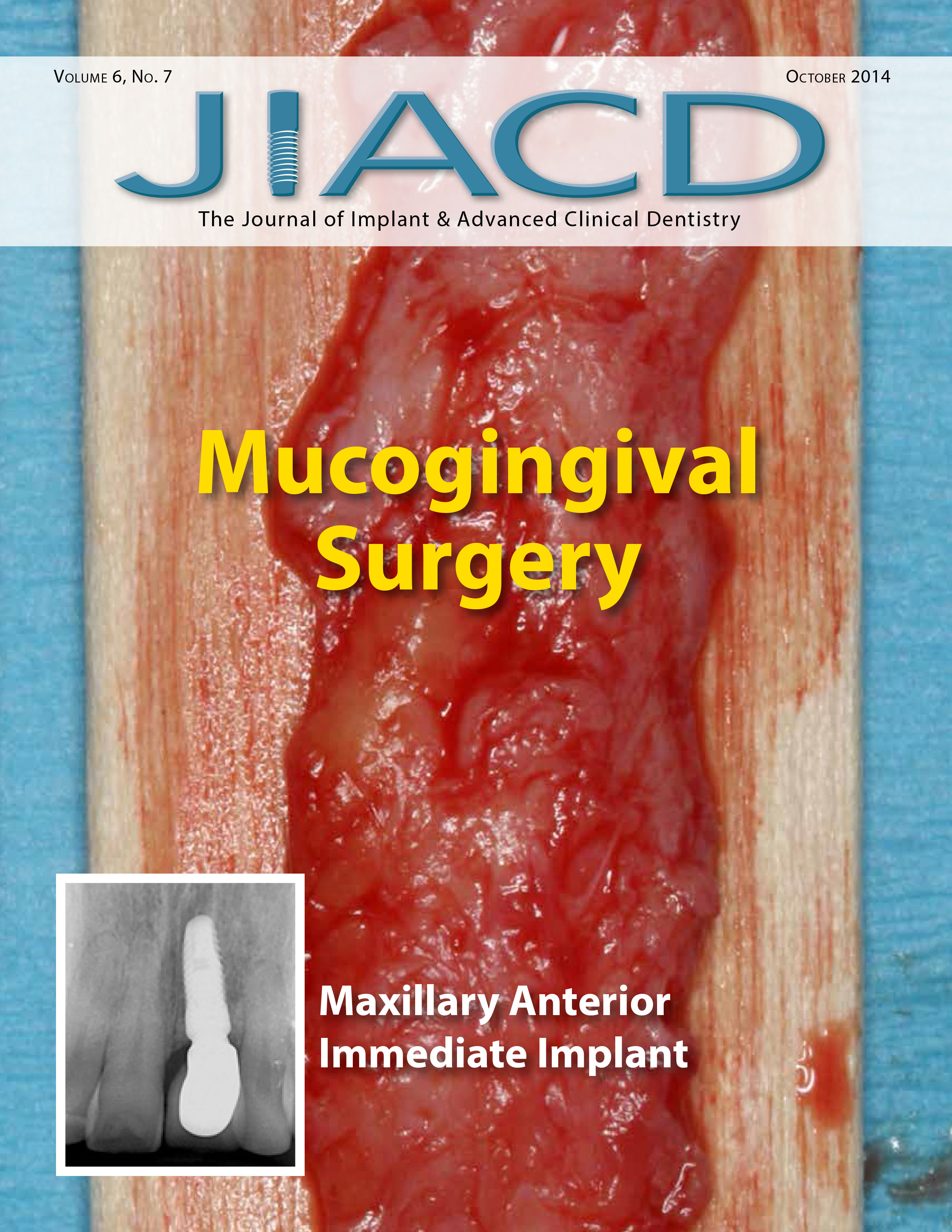 Mucogingival Surgery – Maxillary Anterior Immediate Implant