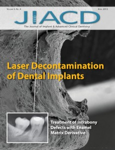 Laser Decontamination of Dental Implants