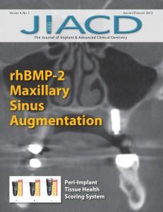 rhBMP-2 Maxillary Sinus Augmentation