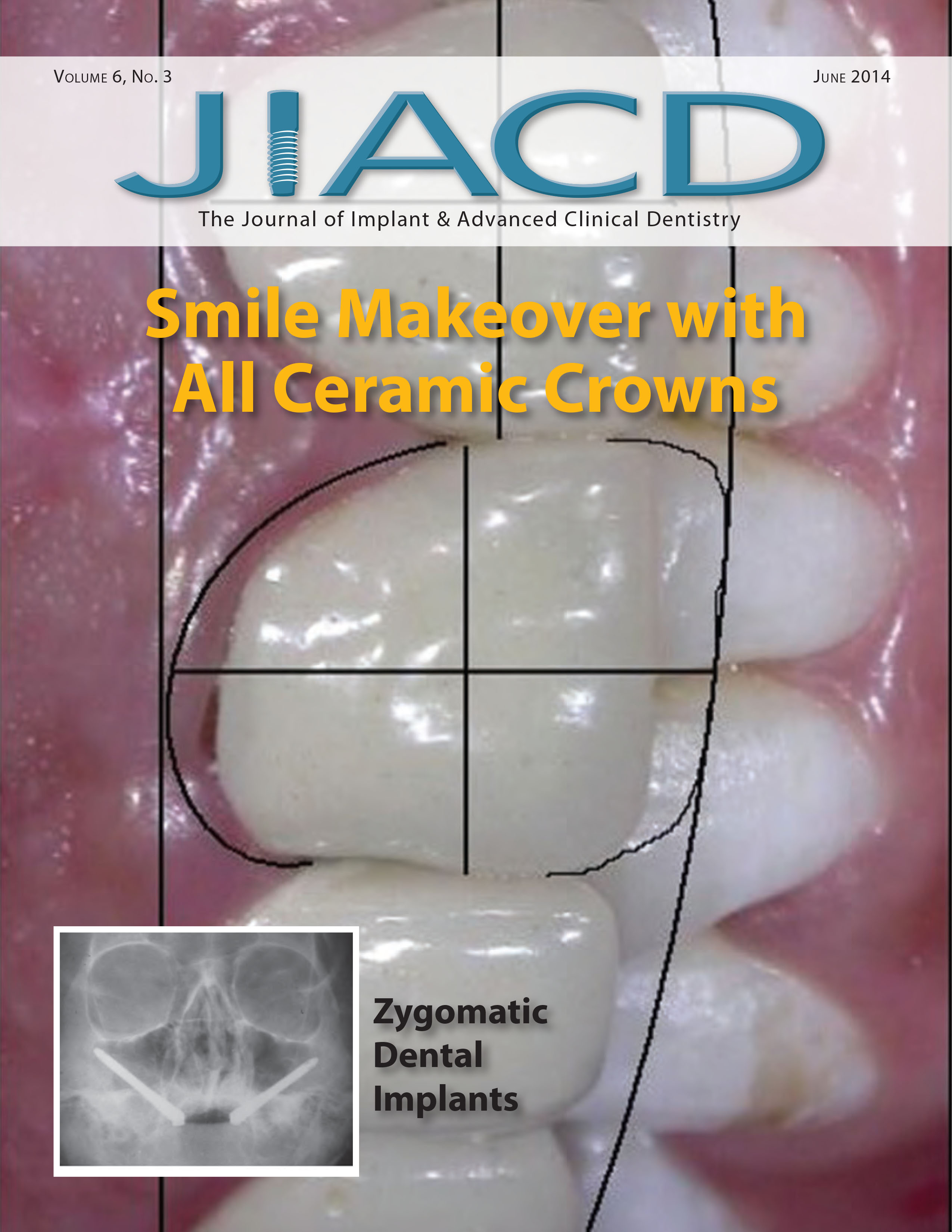 Smile Makeover with All Ceramic Crowns