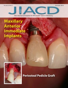 Maxillary Anterior Immediate Implants