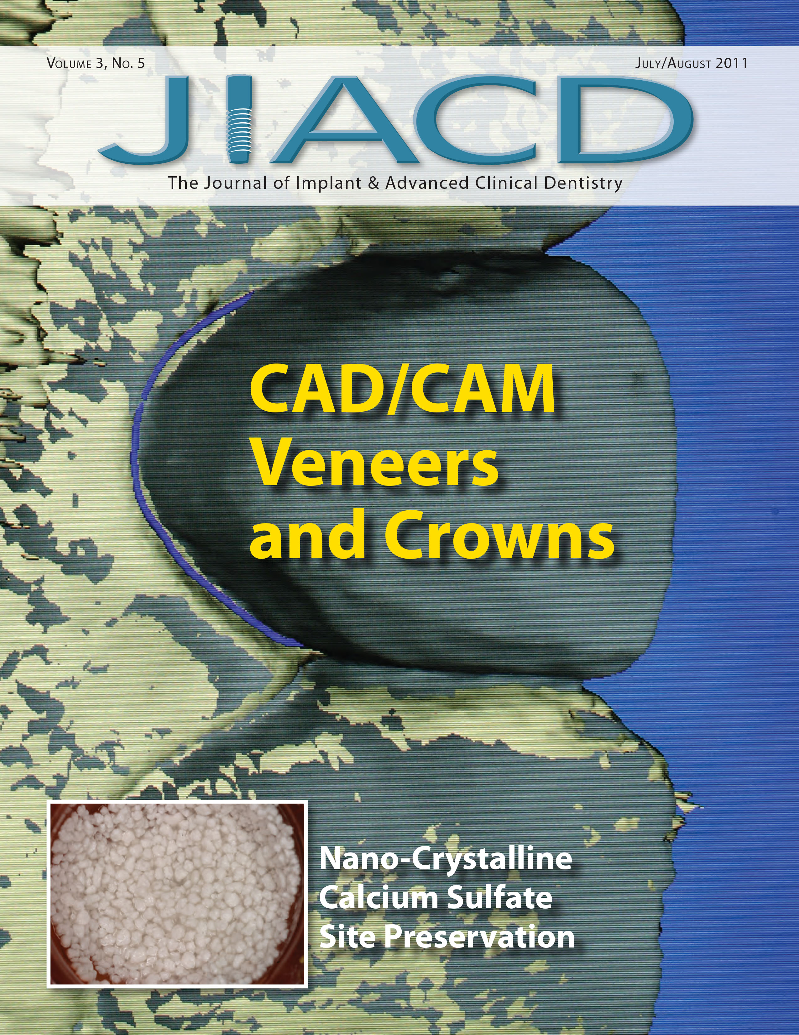 CAD/CAM Veneers and Crowns