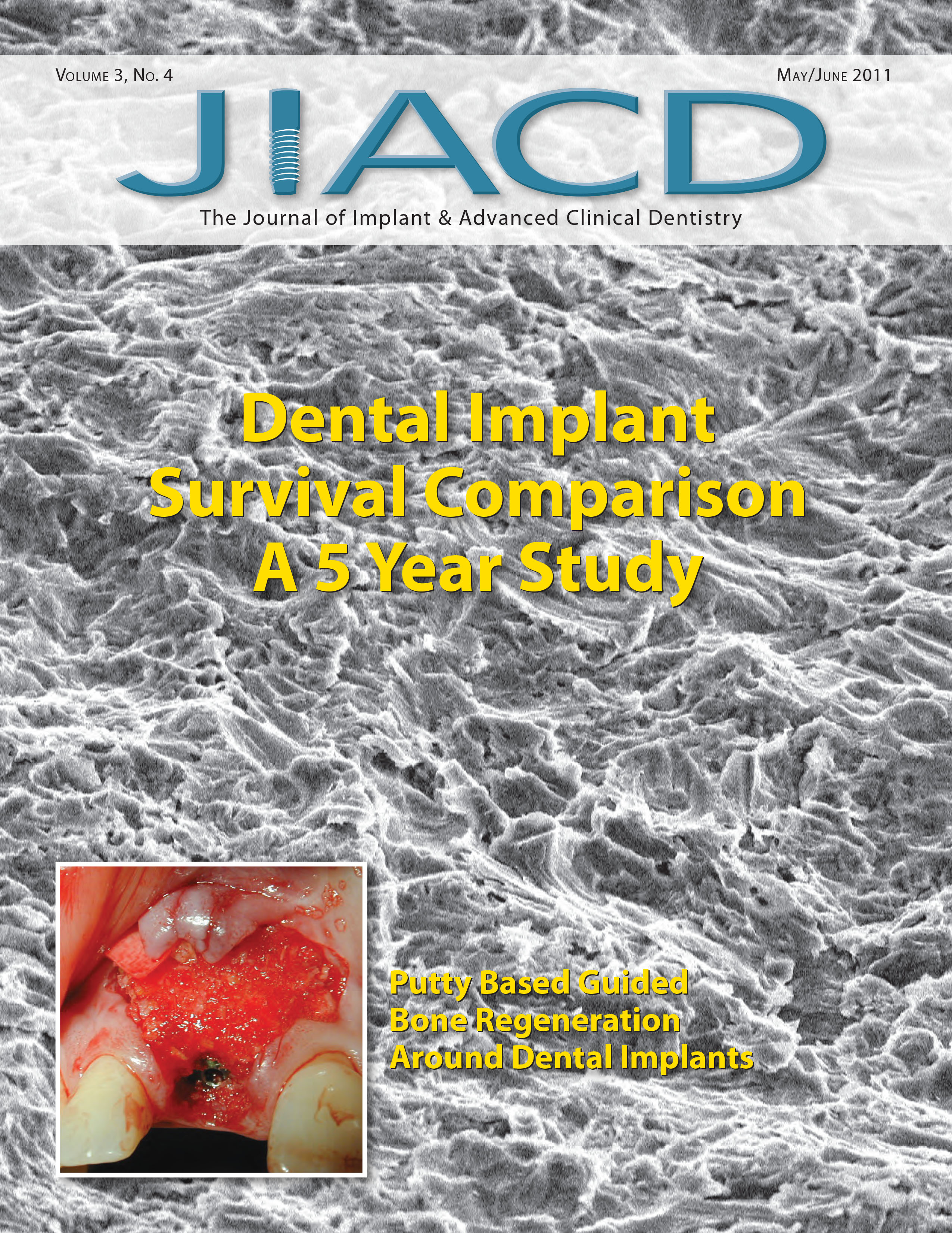 Dental Implant Survival Comparison A 5 Year Study