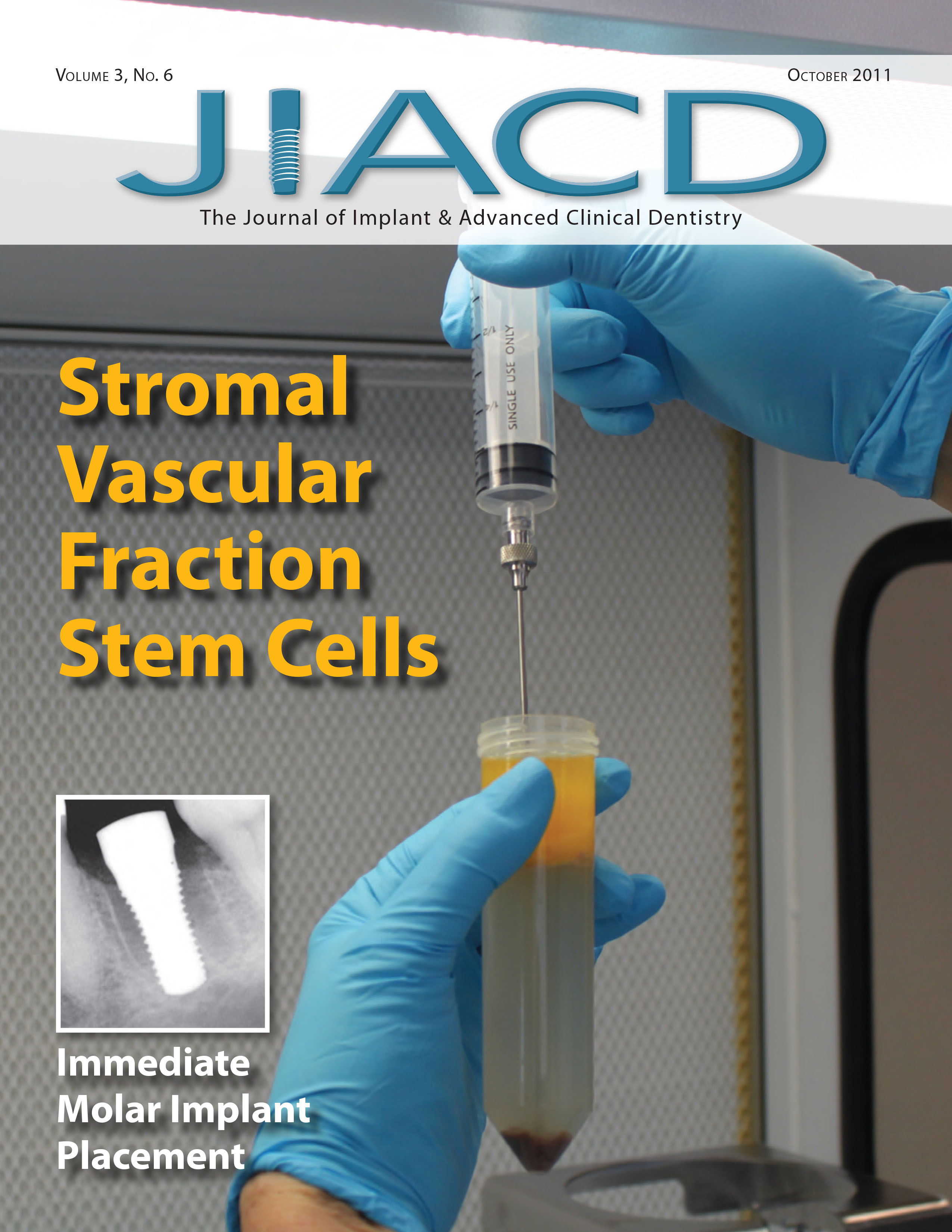 Stromal Vascular Fraction Stem Cells