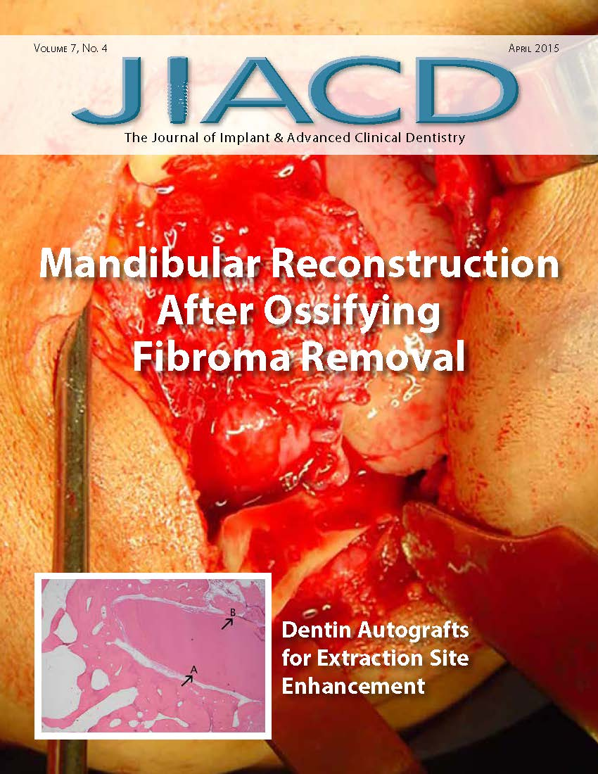 Mandibular Reconstruction and Oral Rehabilitation with Dental Implants by Sequel of Ossifying Fibroma with 8 Years of Evolution: A Clinical Report