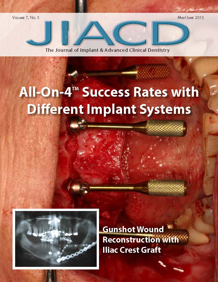 All-On-4 (TM.) Success Rates with Different Implant Systems