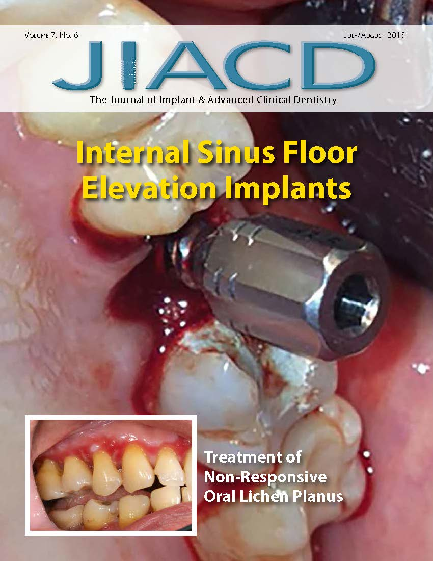 Internal Sinus Floor Elevation Implants