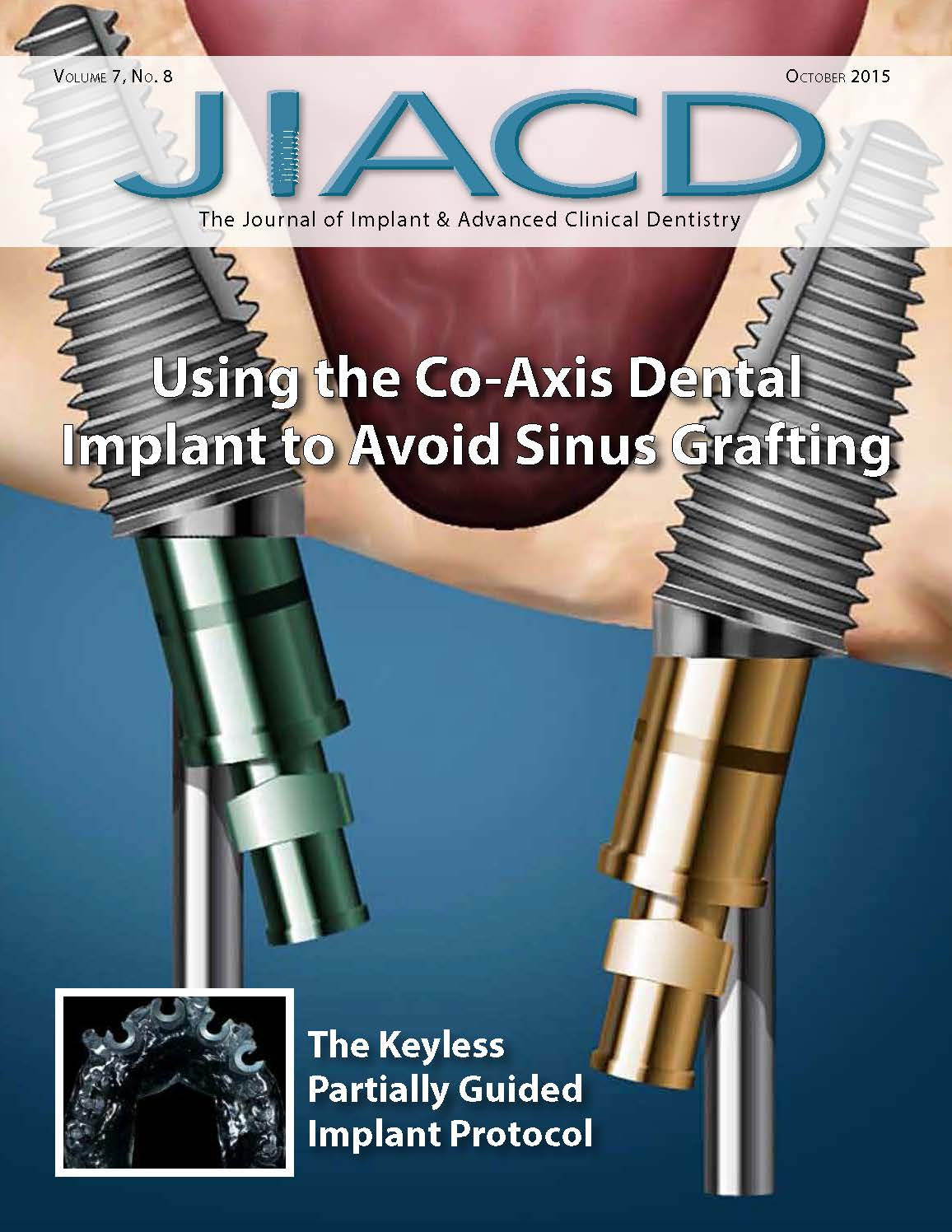 Utilization of the Co-Axis Dental Implant to Avoid Sinus Augmentation: A Case Report