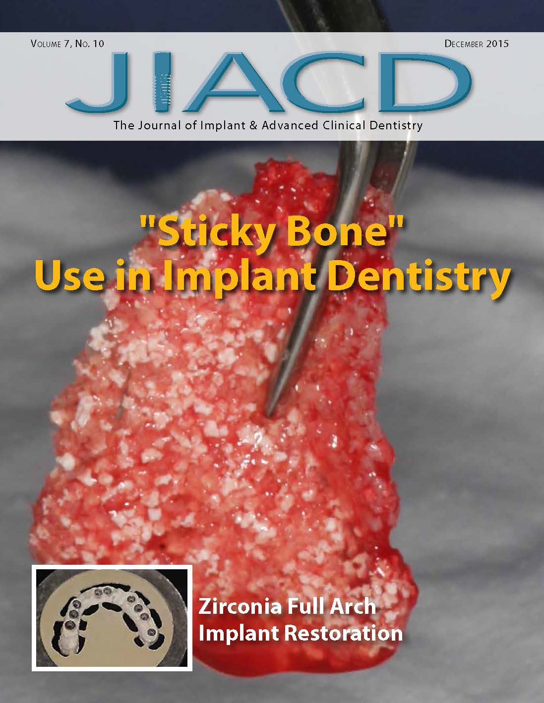 Sticky Bone Use in Implant Dentistry