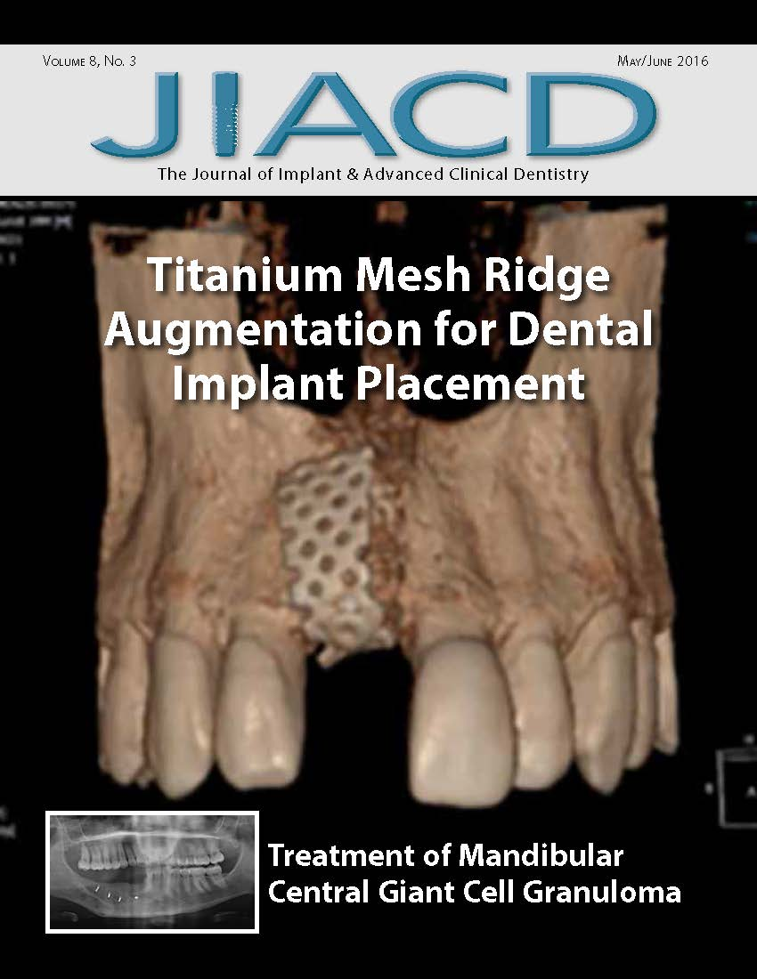 Titanium Mesh Ridge Augmentation for Dental Implant Placement