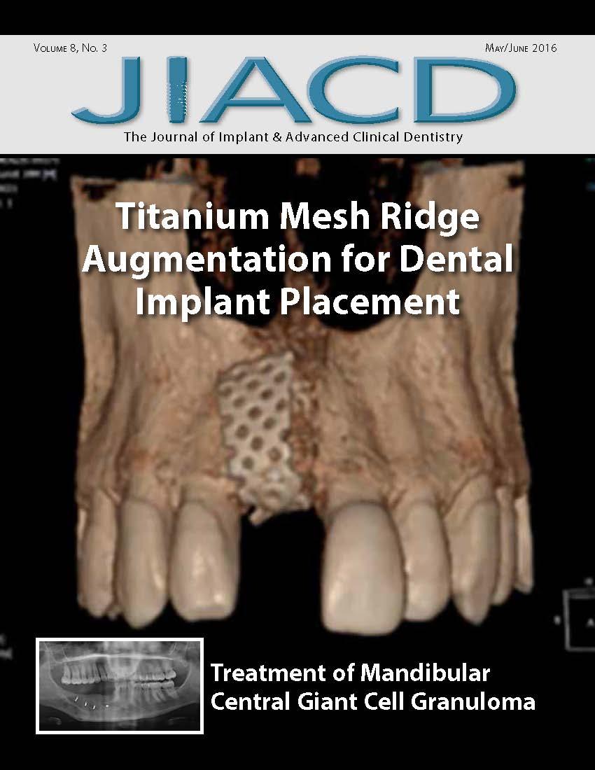 Titanium Mesh Ridge Augmentation for Dental Implant Placement