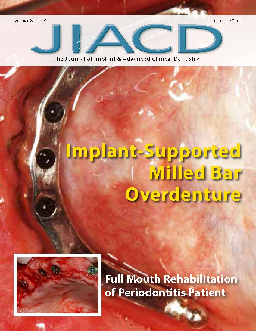 Implant-Supported Milled Bar Overdenture