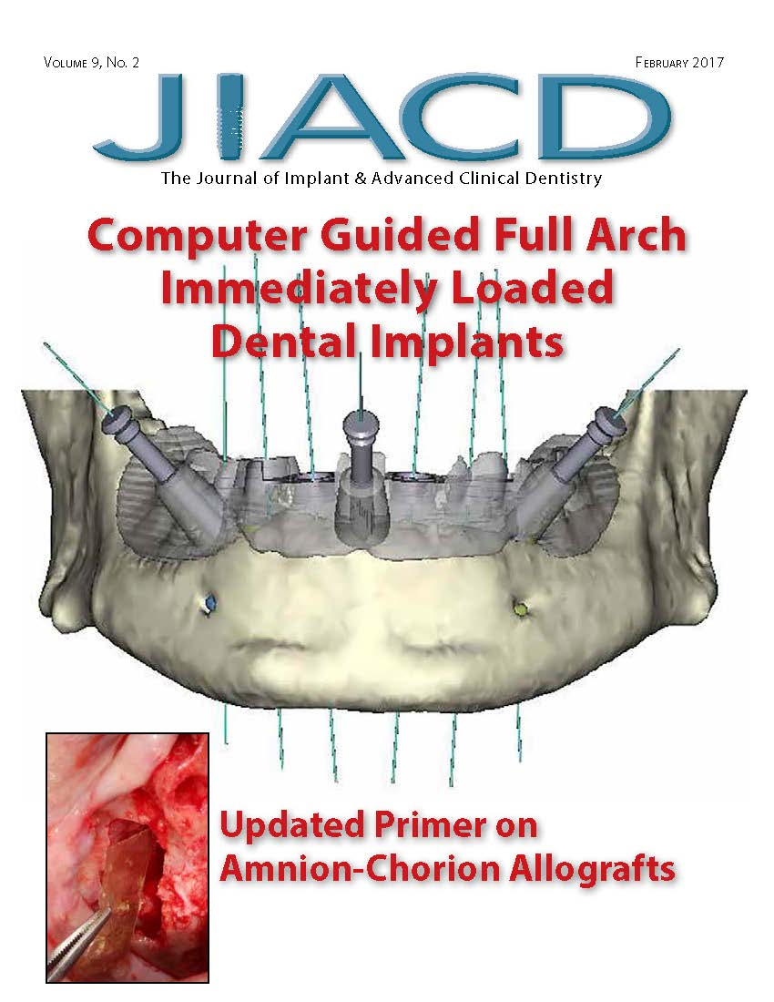 Computer Guided Full Arch Immediately Loaded Dental Implants