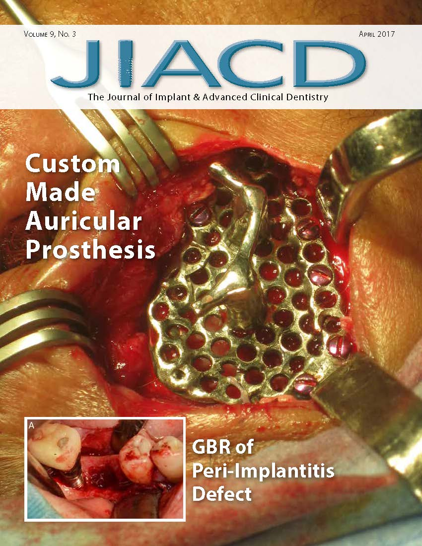 Custom Made Auricular Prosthesis