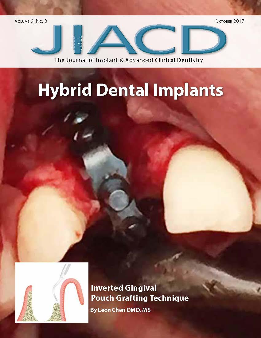 Hybrid Dental Implants