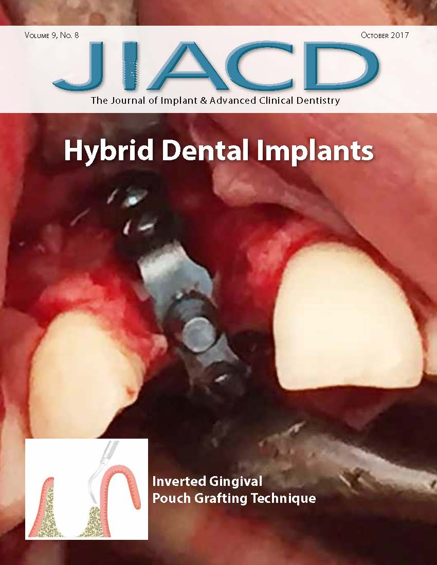 Hybrid Dental Implants
