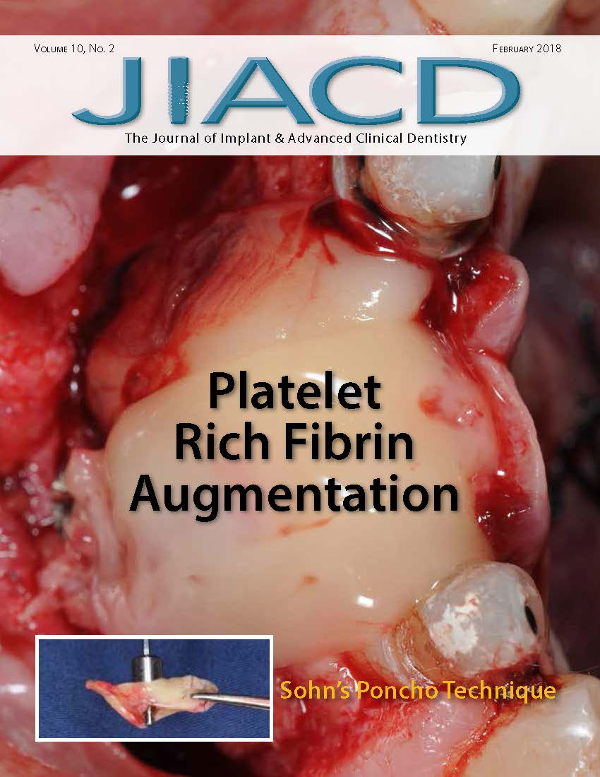 Platelet Rich Fibrin Augmentation