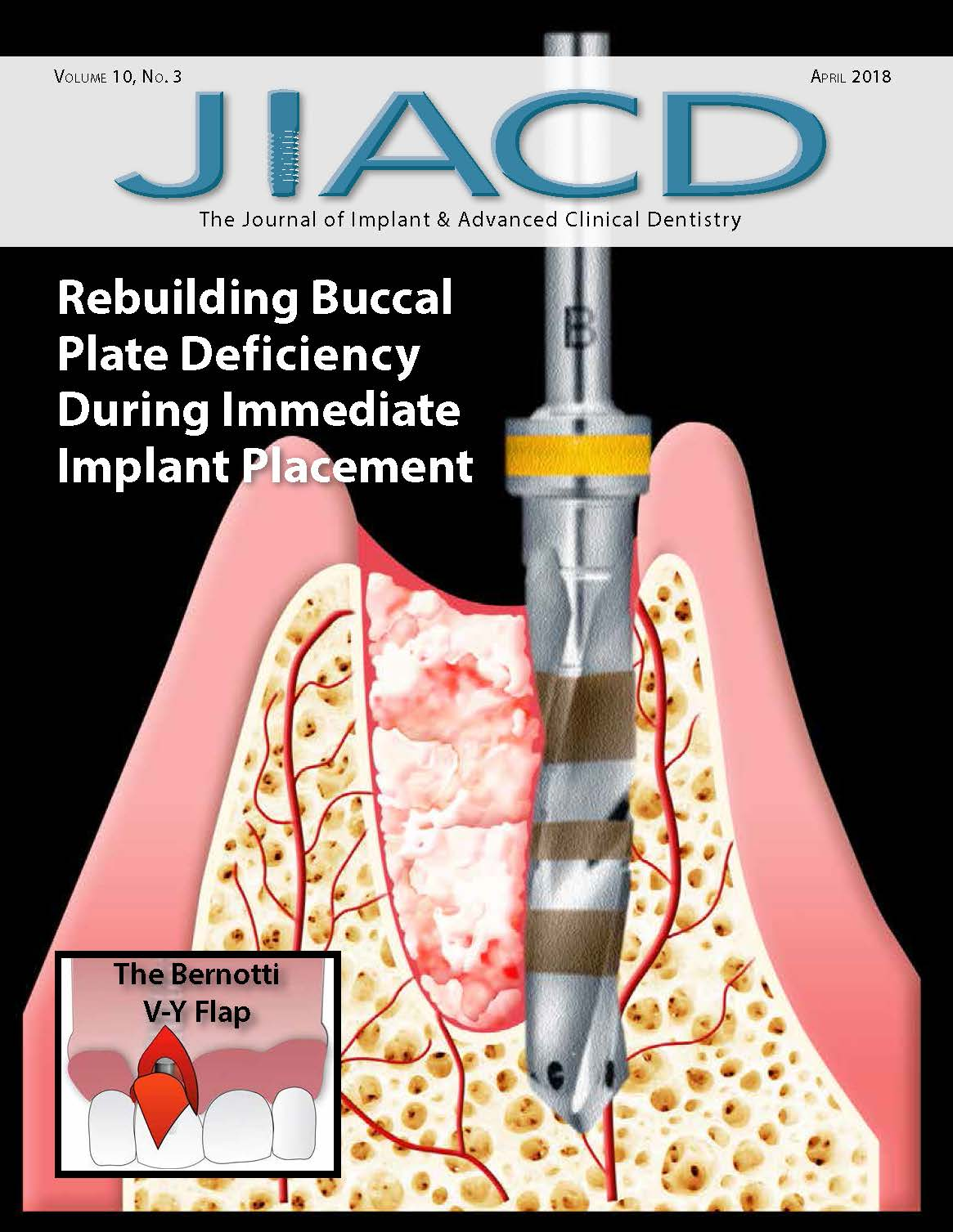 Rebuilding Buccal Plate Deficiency During Immediate Implant Placement