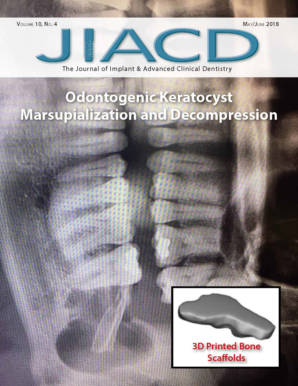 Odontogenic Keratocyst Marsupialization and Decompression