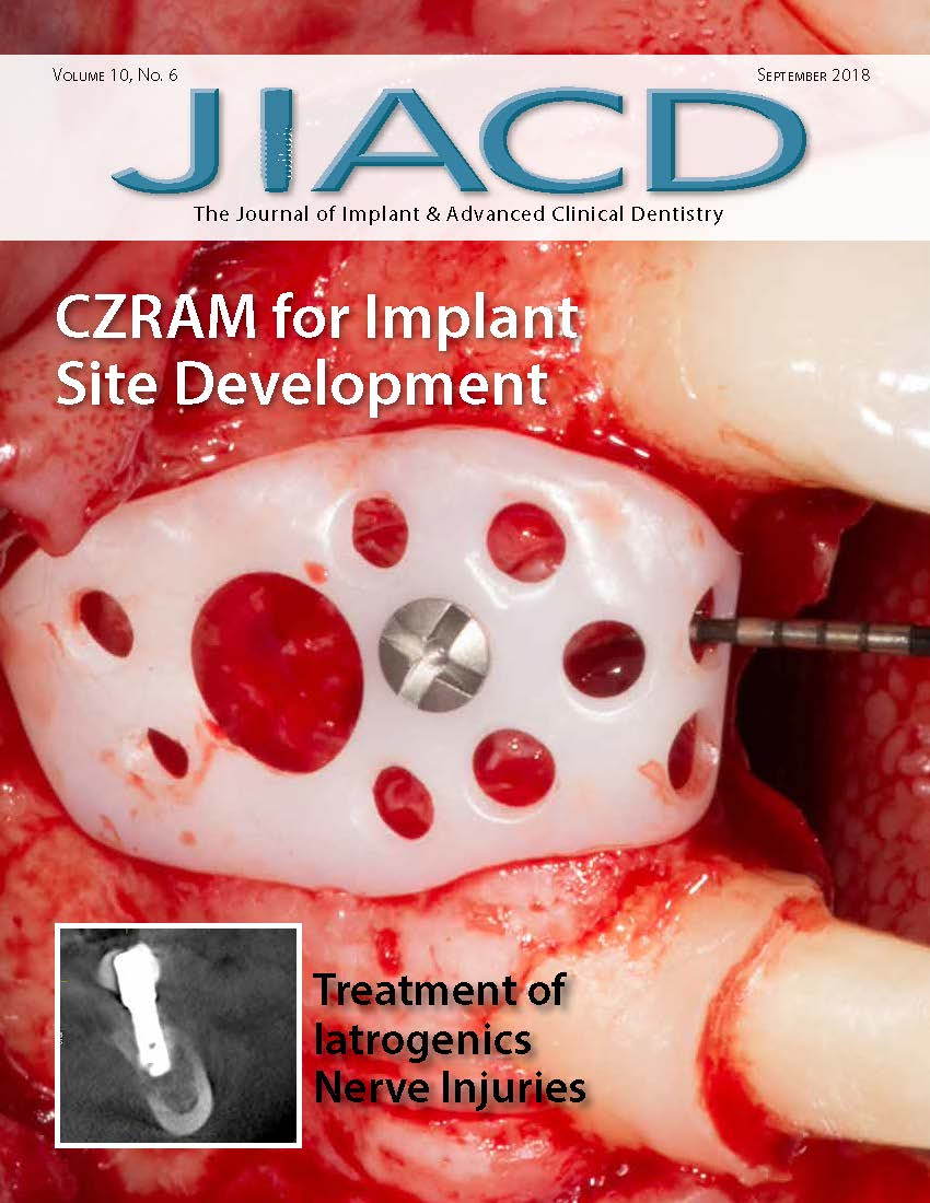 CZRAM for Implant Site Development