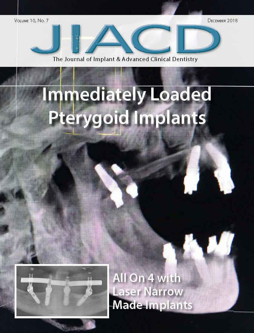 Immediately Loaded Pterygoid Implants