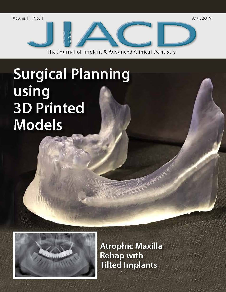 Surgical Planning using 3D Printed Models