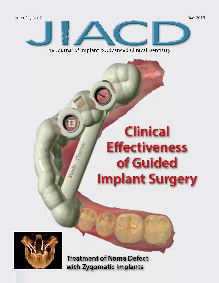 Clinical Effectiveness of Guided Implant Surgery