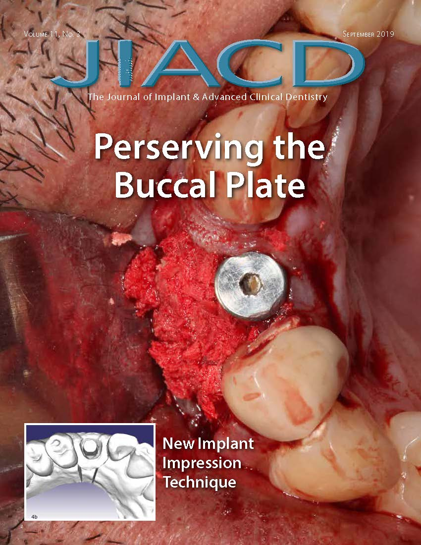 Perserving the Buccal Plate