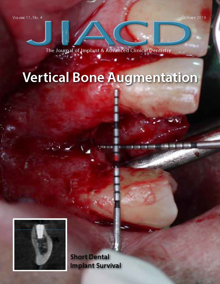 Vertical Bone Augmentation