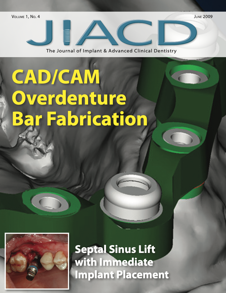 CAD/CAM Overdenture Bar Fabrication