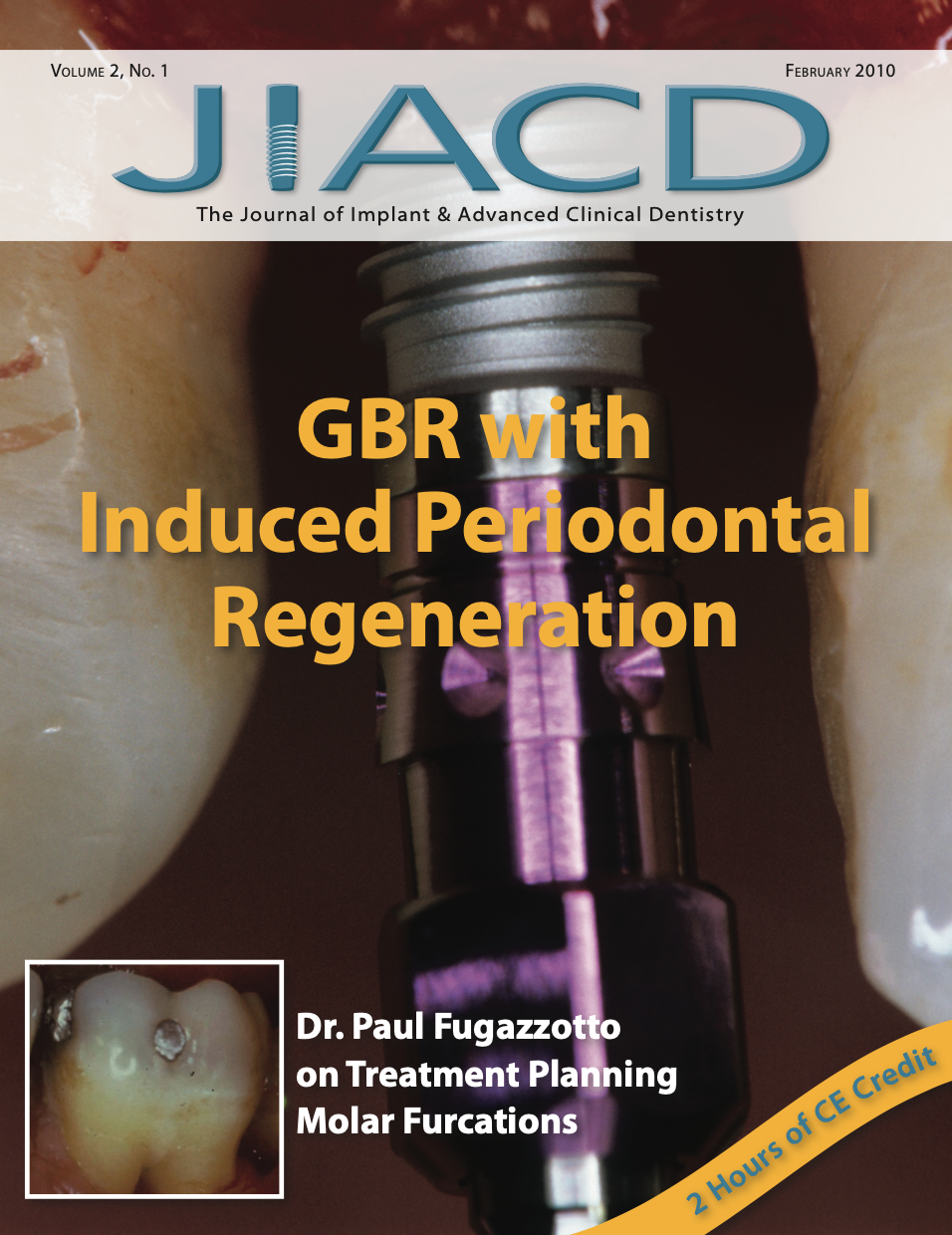 GBR with Induced Periodontal Regeneration