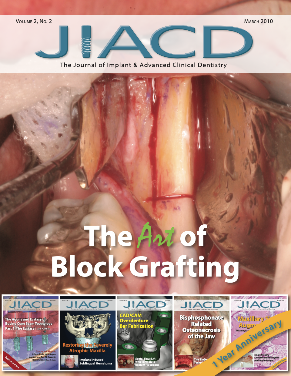 The Art of Block Grafting