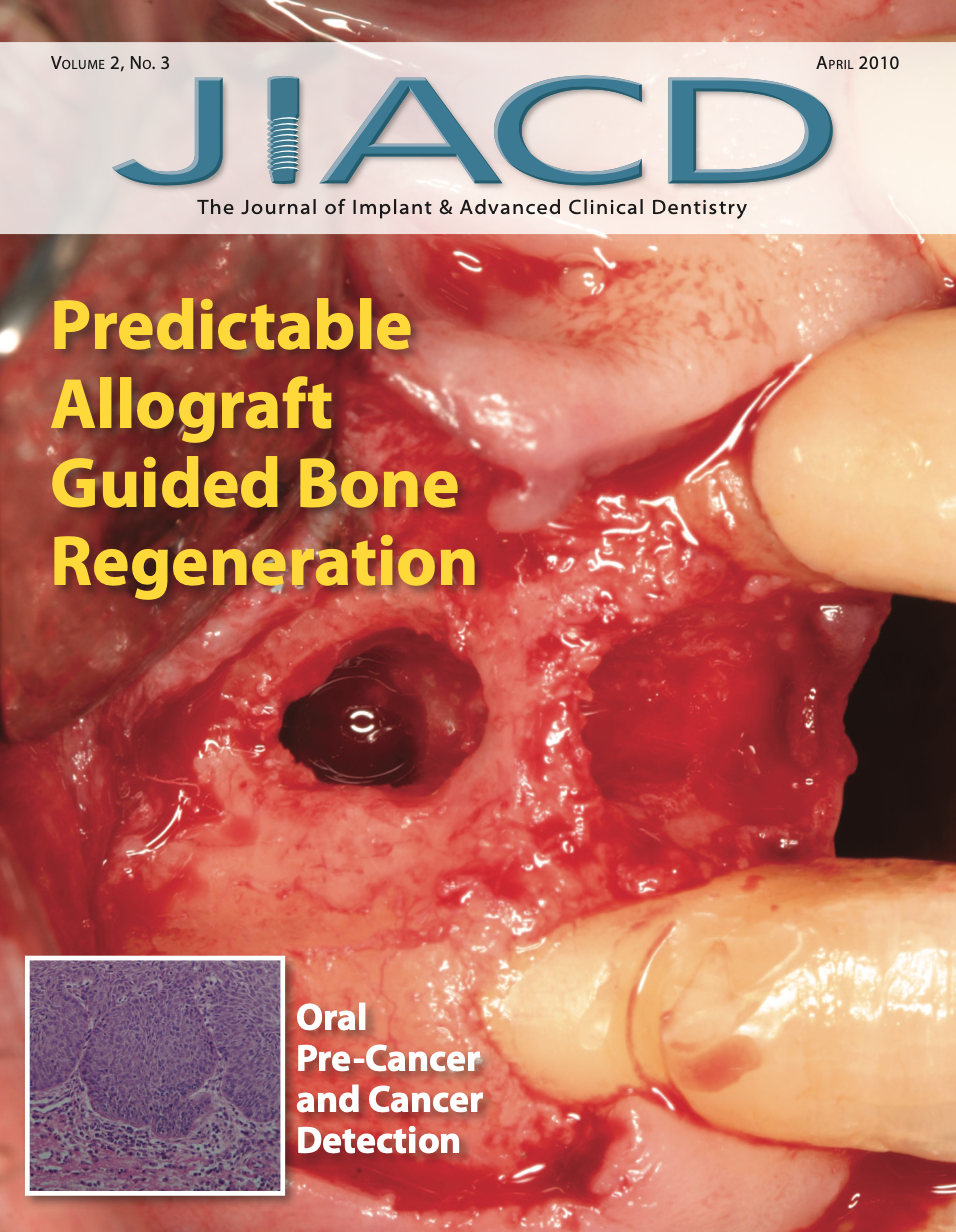 Predictable Allograft Guided Bone Regeneration