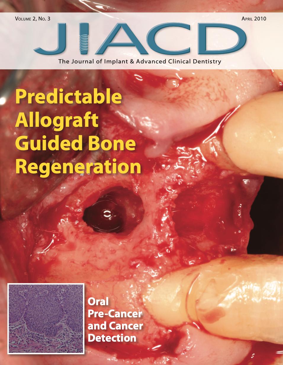 Predictable Allograft Guided Bone Regeneration