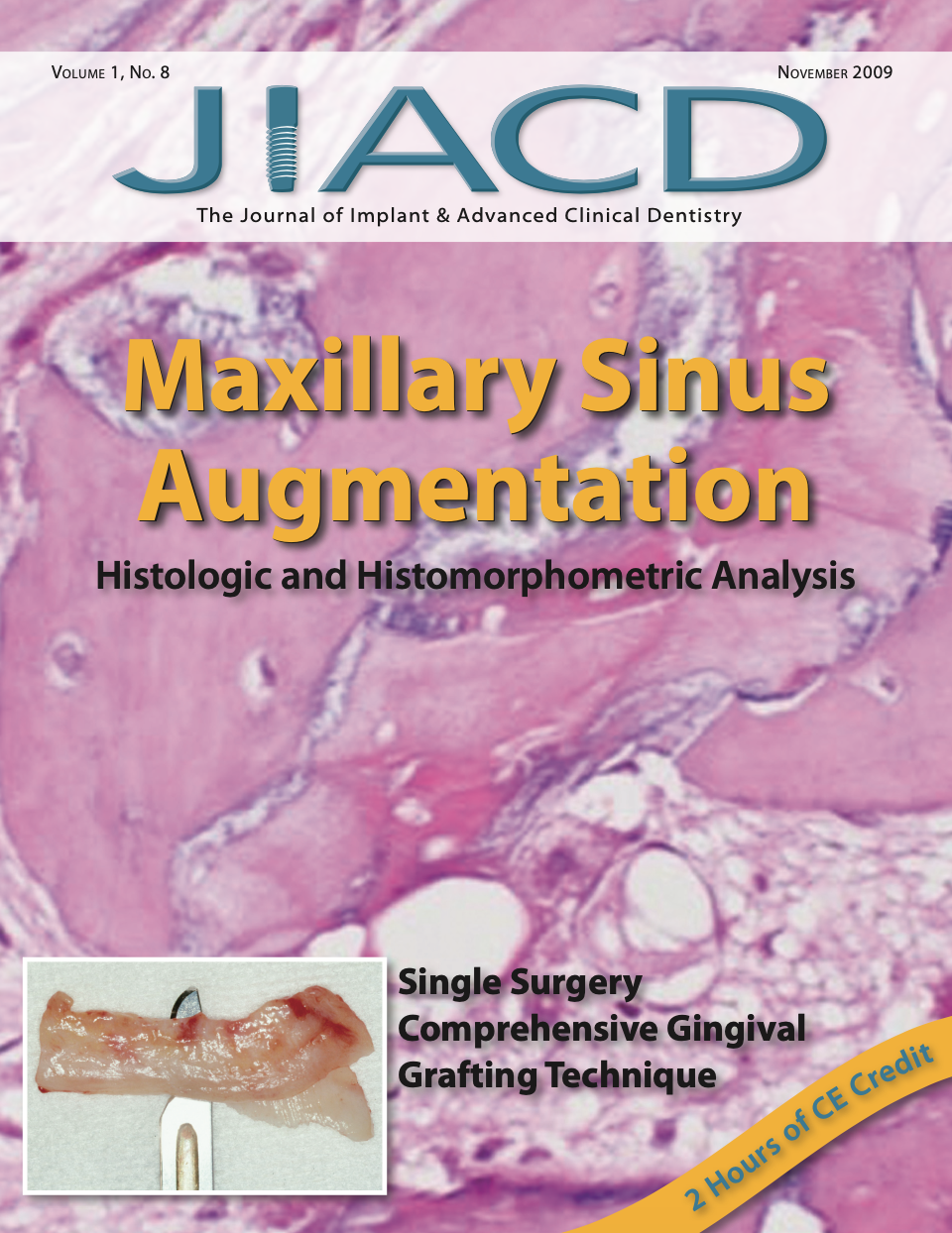 Maxillary Sinus Augmentation