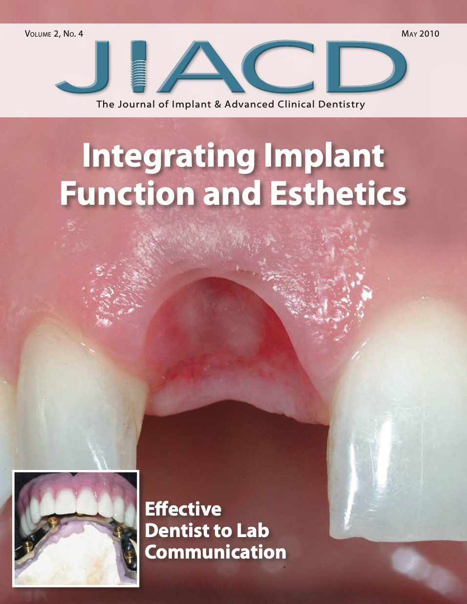 Integrating Implant Function and Esthetics