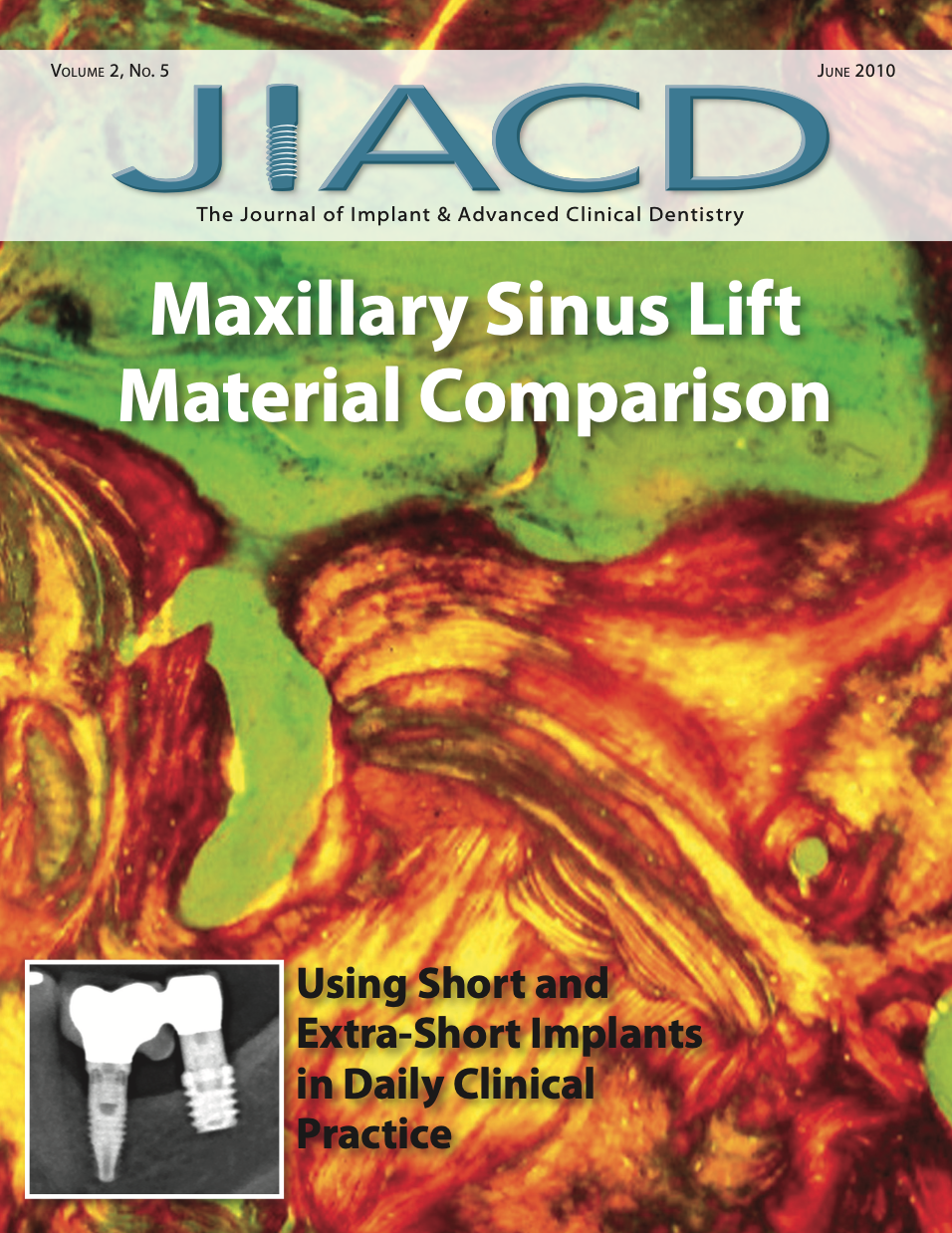 Maxillary Sinus Lift Material Comparison