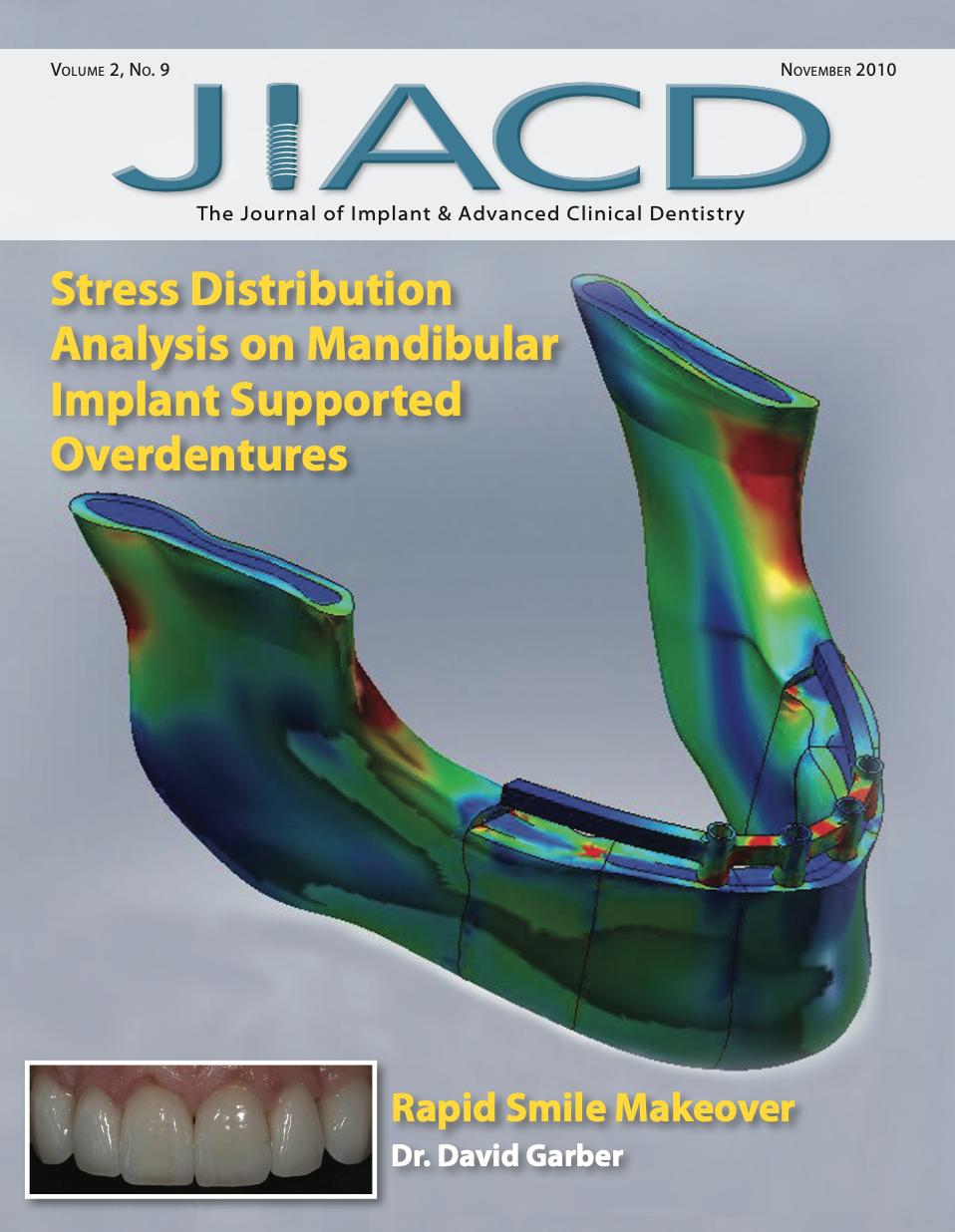 Stress Distribution Analysis on Mandibular Implant Supported Overdentures